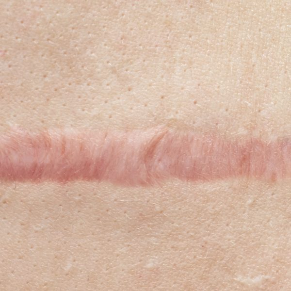 Close up of cyanotic keloid scar caused by surgery and suturing, skin imperfections or defects. Hypertrophic Scar on skin, dermatology and cosmetology concept.