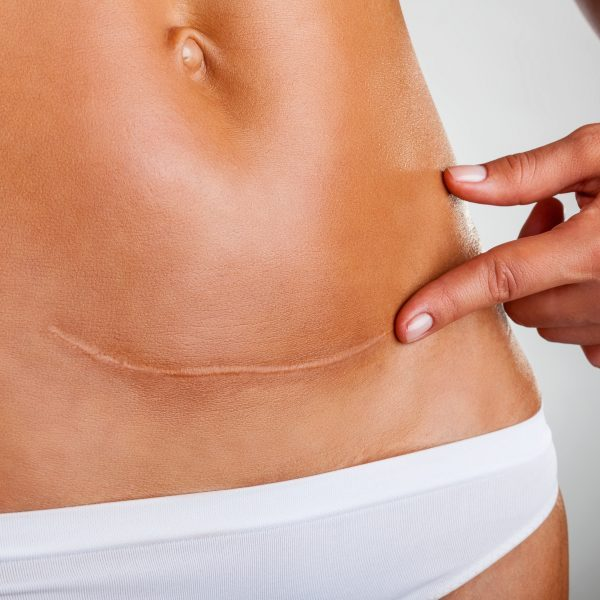 Closeup of woman belly with a scar from a cesarean section
